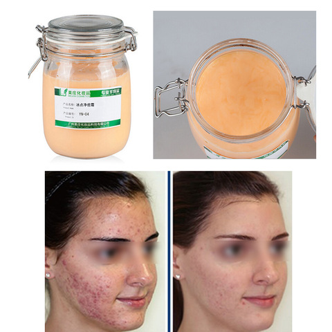 Face Care Acne Scar Removal Cream Acne Spots Skin Care Treatment